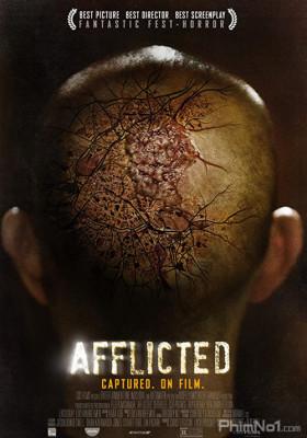 Phim Sức Mạnh Dị Thường - Afflicted (2013)